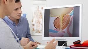 Prostonic Ultra - nerede satılır - sipariş - satın al - eczane - amazon